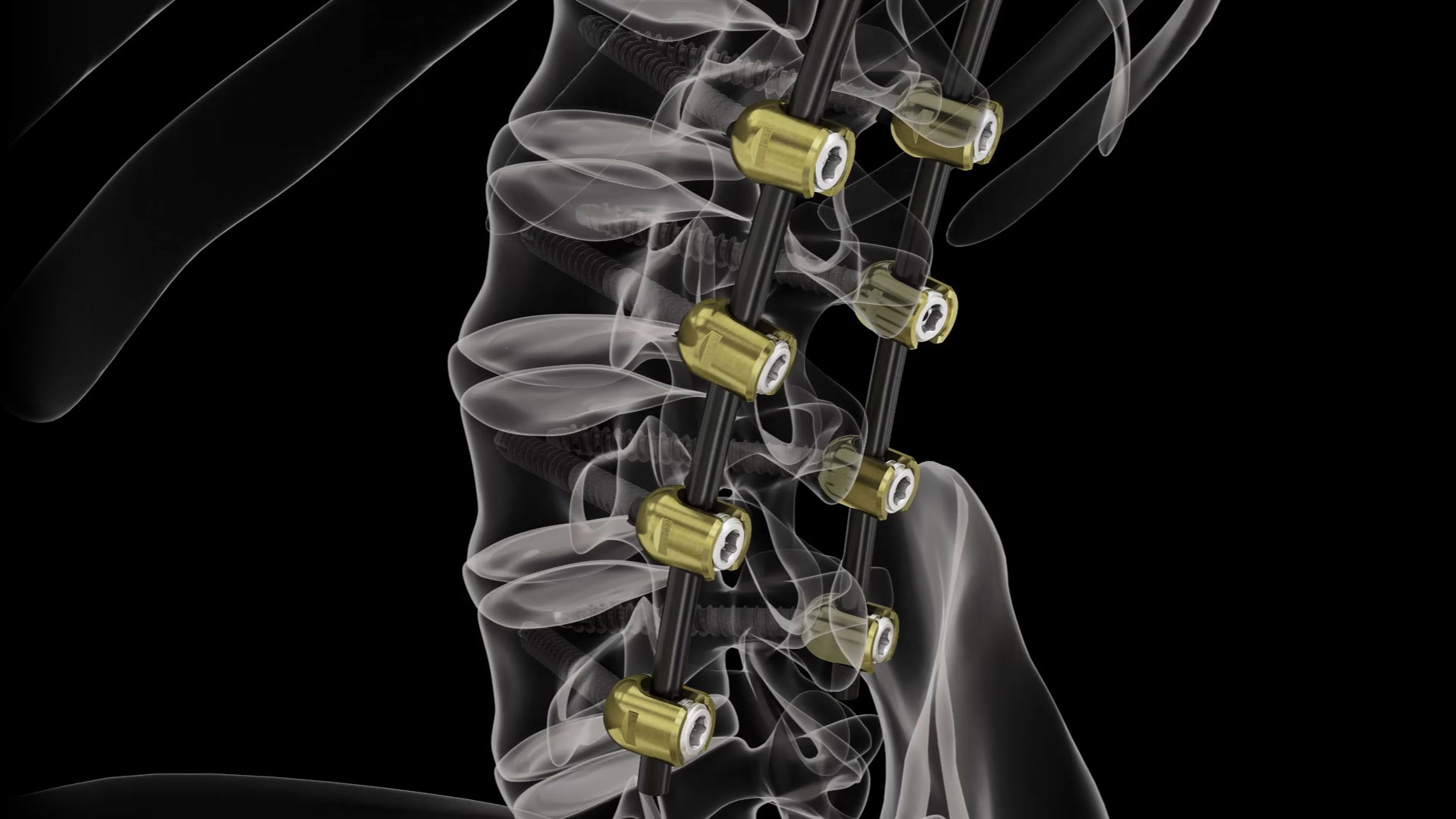 Implants for spine treatment | BlackArmor® by icotec